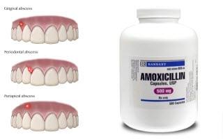 Amoxil y Odontología